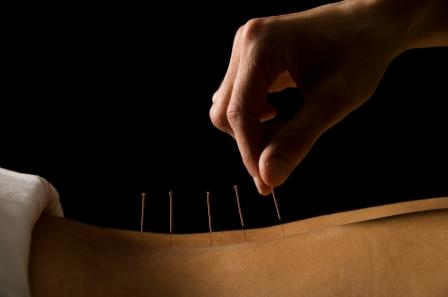 Not Your Average Acupuncture Program